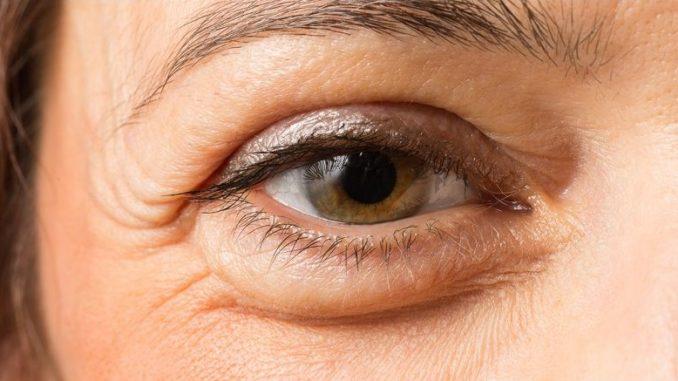 táskás szem - ödéma