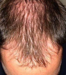 Prosztatagyulladás és hajhullás