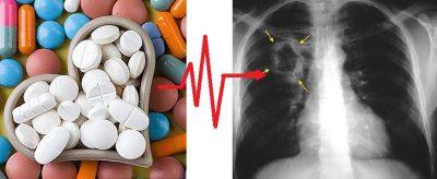 mint magas vérnyomás elleni gyógyszerek mi a magas vérnyomás hogyan lehet azonosítani