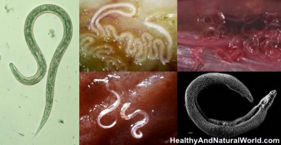 a paraziták fő jelei azok